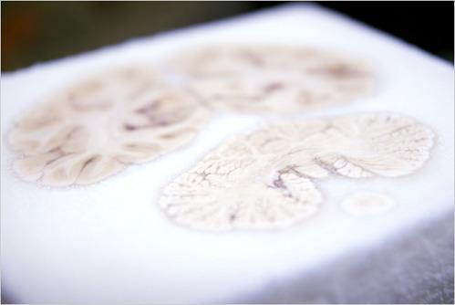 Часть мозга Генри Молейсона (Henry Molaison)