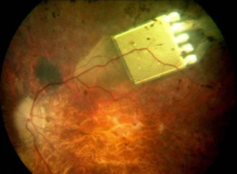 Он использует свет, проходящий через глаз (в противовес альтернативным схемам с внешней камерой), чтобы формировать...