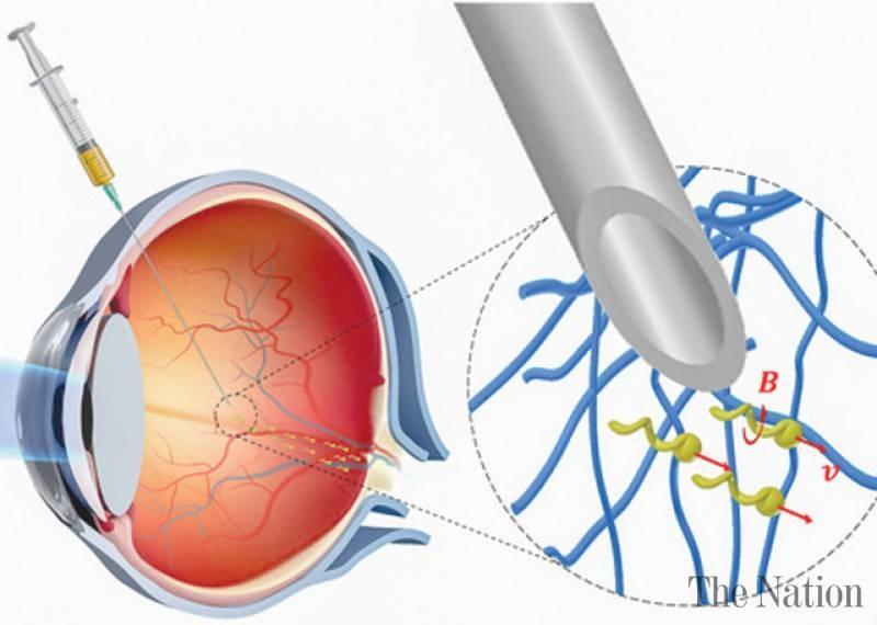 Учёные создали нанороботов, способных «просверлить» ткань глаза, не повредив её